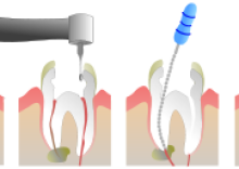 Baton Rouge Dentistry - Root Canal - Kramer Irby, DDS (by Jeremy Kemp)